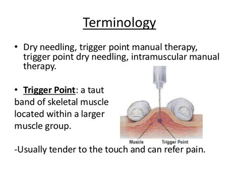 knee pain picture 15