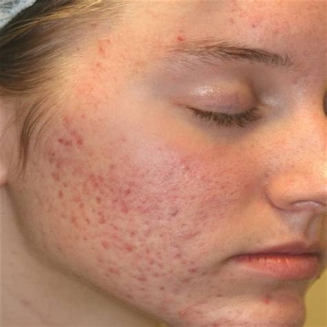 Acne scarring picture 17