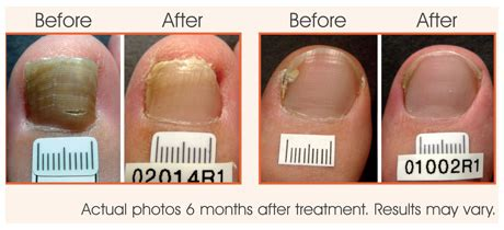 can you get a pedicure with toenail fungus picture 7