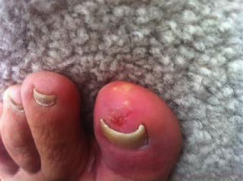 i got rid of nail fungus by picture 6