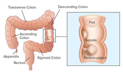 liver and colon cancer picture 5