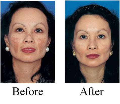 can anti aging cream be used to treat picture 10