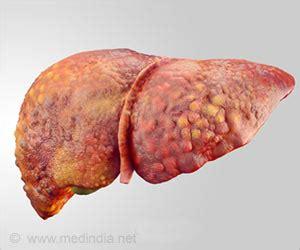 alcoholic fatty liver picture 15