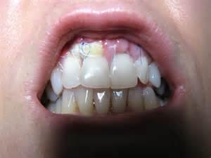 gum grafting picture 3