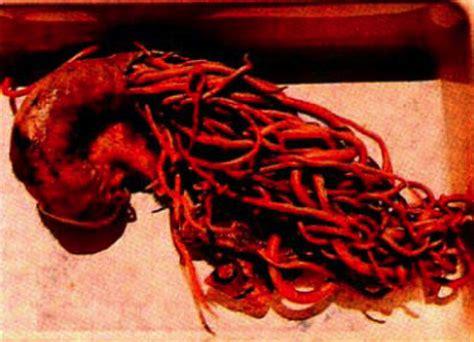 colon cleanse oxygen picture 17