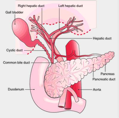 fistula vascular bladder picture 1
