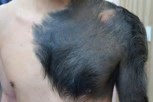 moles with hair picture 5