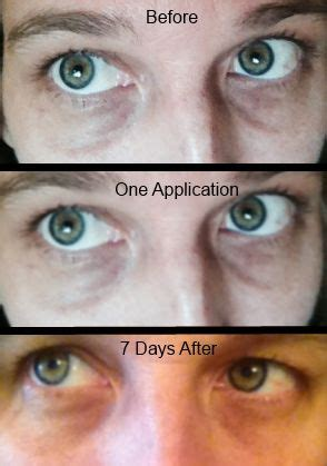 natrual treatment for acne picture 7