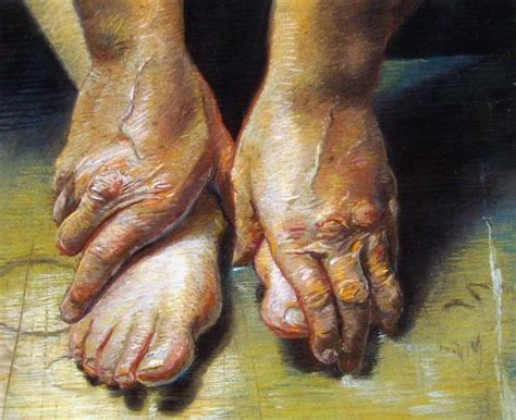 aging foot picture 17