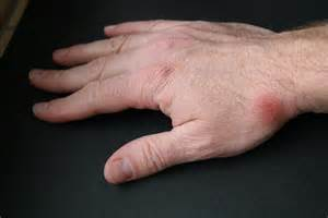 herpes simplex hand picture 6