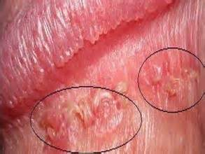 genital herpes in males picture 6