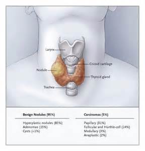 cold defect and solid lesions of the thyroid picture 1