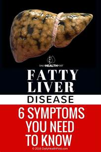 odds of developing liver problems as a heavy picture 13