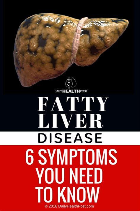 alimentum & bowel picture 9