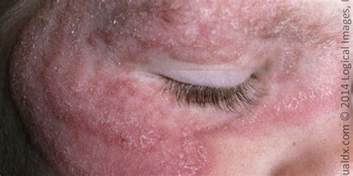 yeast infection in eyes picture 1
