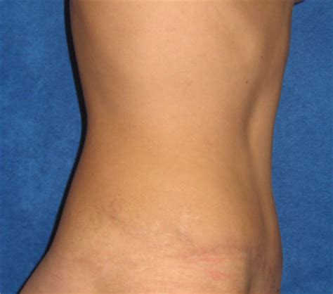 correcting stretch marks picture 1
