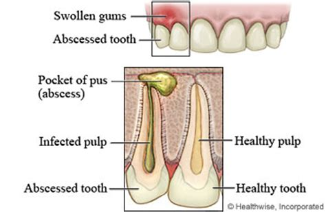abcessed teeth and neck pain picture 17