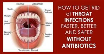 bacterial infections of the throat picture 13