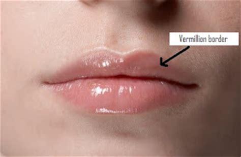 Sebaceous glands lips picture 15