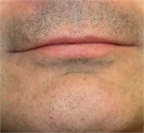 facial wart removal picture 10