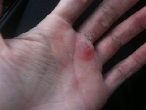 huge skin blisters on hand photos picture 6