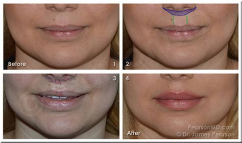 subnasal lift picture 7