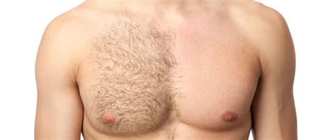 men's hair removal picture 7