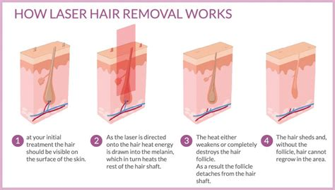 what do celebrities use for hair removal picture 5