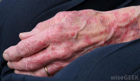 allergy symptons include hives that itch is life threatening picture 5