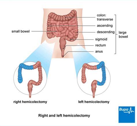 colon surgery proceedure picture 18
