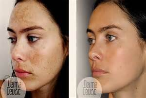 revitol skin care for melasma picture 11