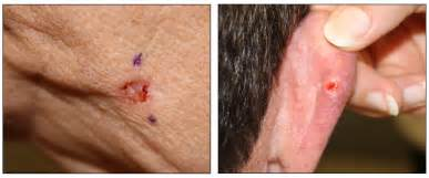photos of skin cancer picture 9