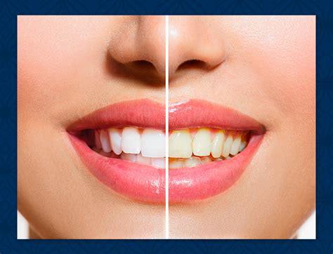 california whiten teeth picture 10