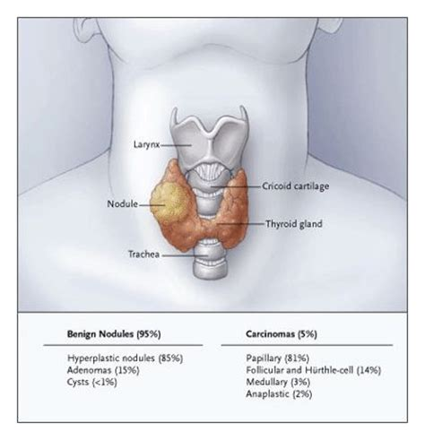 ecogenic thyroid nodule symptoms picture 2