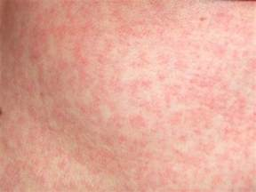 coxsackie virus treatment natural picture 3