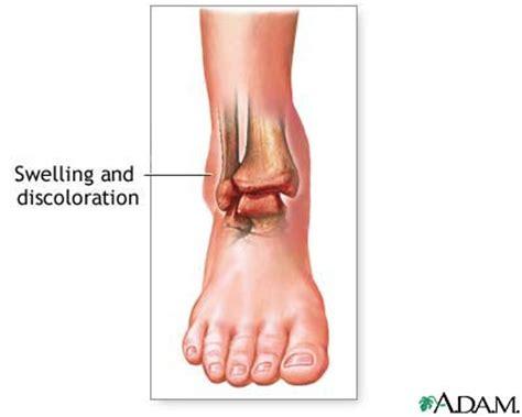 liver failure + swollen ankles picture 3