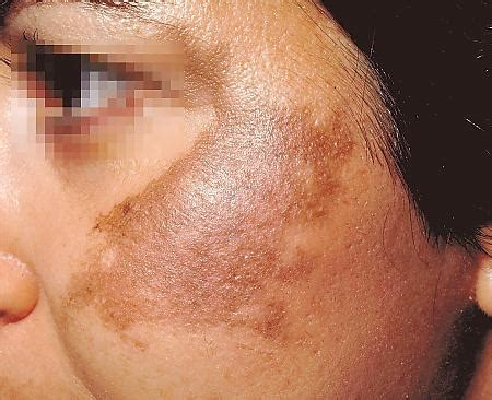 anti aging solution to melasma skin picture 2