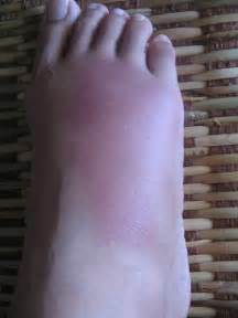 can foot fungus cause swollen nodes in legs? picture 7