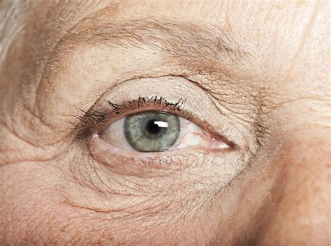 ageing eyes picture 3