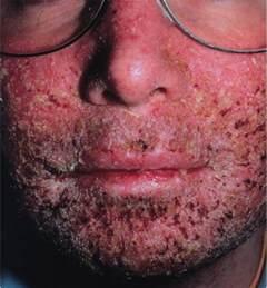 impetigo is herpes picture 1