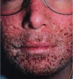 impetigo is herpes picture 2