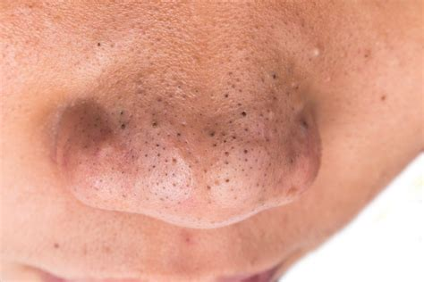 Natural remedies for acne picture 3