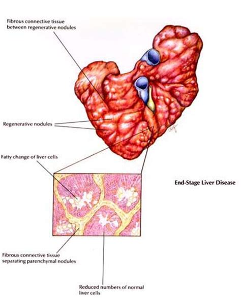 canine liver disease picture 11