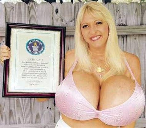 breast enlargement 800cc picture 3