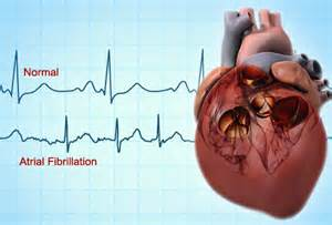 prednisone and senior citizens with irregular heartbeat and picture 5