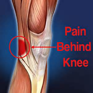 knee pain picture 21