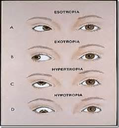 eye muscle weakness picture 3