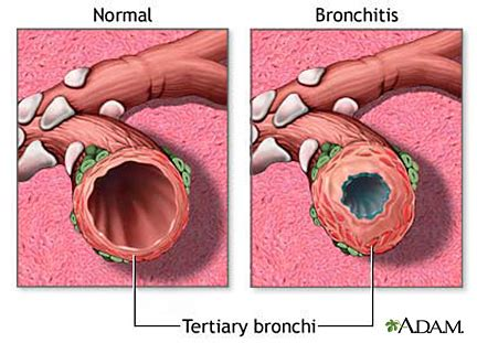 can you get chronic bronchitis if you don't picture 6