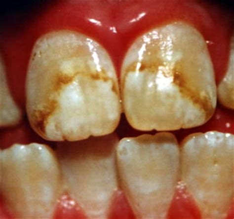 discolored teeth fluorosis picture 9