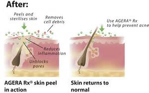 treatment for boils and pimples picture 6